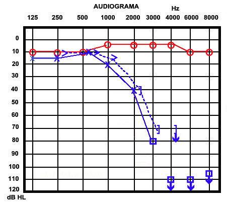 audiograma. foto: audiologiaacademica.blogspot.com.es